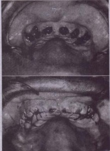 FIG. 13-7 A, Clinical appearance 'of maxillary ridge' after removal of teeth and, before bony recontourinq. 8, Properly contoured alveolar ridge free of irregularities and bony ~ndercuts,