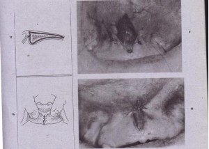 FIG. 13.25-cont'd E and F, Placement of suture through mucosal margins and periosteum, which closes mucosal margin and sutures mucosa to periosteum at depth of vestibule. G and H, Wound dosure. Removal of tissue in areas adjacent to attache