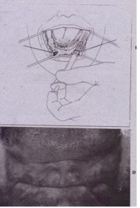 FIG. 13-33 Diagrammatic representation of hydroxyapatite (HA) augmentation. procedure. A, Vertical incisions placed anterior to mental nerve area. Subperiosteal tunnels are then developed in posterior and anterior areas. Retraction sutures are used to elevate margins of incision. 8, Injection of HA into subperiosteal tunnels. C, Soft tissue closure. D, Preoperative clinical photograph .•
