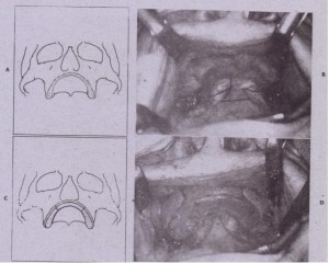 FIG. 13-34 Iliac crest onlay bone reconstruction of maxilla. A, Diagram of atrophic maxilla. B, Clinical photograph. C, Three seqrnents of bo~e are secured in place. Small defects are filled with cancellous bone. 0, Clinical photograph.