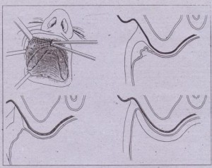 ·FIG. 13-41-cont'd B, Anterior vertical incision is used to create submucosal and then supraperiosteal tunnel along lateral aspects of maxilla. C, Cross-sectional view showing submucosal tissue .layer, D, Excision of submucosal soft tissue layer. E, Splint in place holding mucosa against periosteum at depth of vestibule until healing occurs