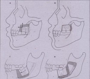 FIG. 13 43 Segmental osteotomies. A and B, Posterior maxillary osteotomy for superior and anterior repositioning of posterior segment of maxilla. This improves interarch space for construction of removable partial mandibular denture. C and D, Example of mandibular seqrnental oste9tomy to reposition molar tooth to function <IS distal abutment for fixed prosthetic appliance or for improved support as partial denture abutment.