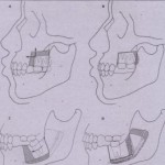 Segmental Alveolar Surgery in the Partially Edentulous Patient