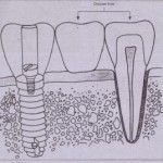 CLINICAL IMPLANT COMPONENTS