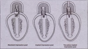 FIG. 14-15 Types of impression posts. Left to right: (1) Transfer abutment post: used if abutment need not be changed on laboratory cast. (2) Transfer implant post: used if it is desirable to change abutments on laboratory cast. This abutment should have at least one flat .side to correctly orient the antirotational feature. (3) Pickup implant lmpression post: used to orient antirotational features or to take impressions of very divergent implants.