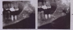 FIG. 14-56 A, Radi09ra'ph taken: imm~iately after place~ent of, two implants in right posterior mandible.Jrnptants appear tQ. violate s·uperior border of inferior !llveolar carial (dotted line). 8, Implants were replaced and are above canal (dott~ ;ine): Patient had no permanent deficit.