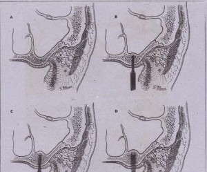 FIG, 14-63 A, Pneumatized sinus. B to D, Gradual enlargement of the osteotomy site for the implant results in compaction of the bone surrounding the implant site and also pushes bone ahead of the implant, indirectlY,elevating the sinus floor and allowing space for a longer implant.
