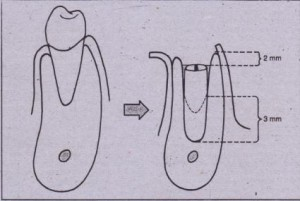 ·FIG. 14-65 Implants placed in fresh extraction sockets must ha\ e 4 mm of precise fit along apical aspect of implant. They should be countersunk 2 mm, and gap between sides of extraction socket and implant should be less than 1 mm. If gap is greater than 1 mm, grifting with demineralized allogeneic bone should be con~idered.