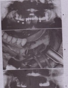 FIG. 14-66 A, Panoramic radiograph reveals supereruption of the posterior maxillary dentition ,with loss of interarch space. Inadequate room for implants above the inferior alveolar nerve and no room for a graft isJound. 8, The inferior alveolar nerve is positioned buccally to allow implants to be placed. C, postoperative panoramic radiograph shows implants of ade- .quate length extending to the.inferior border,