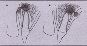 FIG. 15~-1 When infection erodes through bone, it will enter soft tissue through thinnest bone. A, Tooth apex is near thin labial bone, so infection erodes labially, B, Right apex is near palatal aspect, so bone will be perforated.