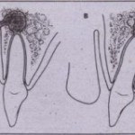 NATURAL HISTORY OF PROGRESSION OF ODONTOGENIC INFECTIONS