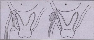 FIG. 15-2 Relationship of point of bone perforation to muscle attachment will determine fascial space involved. A, When tooth apex is lower than muscle attachment, vestibular abscess results. B, If apex is higher than muscle attachment, adjacent fascial space will be involved.