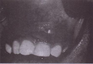 FIG. 15-3 Vestibuiar abscess arising from maxillary incisor. Overlyinq mucosa is thin because pus is near surface .•
