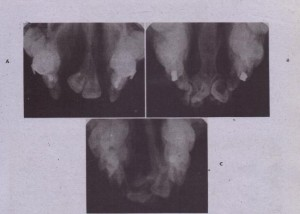 FIG. 27-5 Occlusal radiographs from individuals with various types of cleft deformities. A, Bilateral complete cleft of alveolus and palate. Note absence of permanent lateral incisors. B, Bilateral complete .deft of alveolus and palate. Note absence of permanent lateral incisor on patient's left side. C, Unilateral complete ~Ieft of alveolus and palate. Note supernumerary teeth.