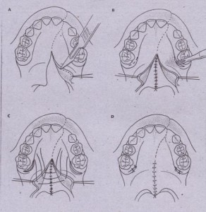 •• r- .'; ; ': Triple-layered soft palate closure. A, Excision of mucosa at cleft margin. B, Dissection of nasal mucosa from soh palate to facilitate closure. Nasal muc.osa is sutured together with knots tied . on nasal (i.e., superior) surface. Note small incision made to insert instrument for hamular process fracture. ,This maneuver releases tensor vell palatini and facilitates approximation in midline. C, Muscle is dissected from insertion into hard palate, and sutures are placed to approximate muscle in midline. 0, Closure of oral mucosa is accomplished last. E, Layered closure of soft palate. (From Hayward JR: Oral surgery, Springfield, III, 7976, Charles C Thomas.)•• r- .'; ; ': Triple-layered soft palate closure. A, Excision of mucosa at cleft margin. B, Dissection of nasal mucosa from soh palate to facilitate closure. Nasal muc.osa is sutured together with knots tied . on nasal (i.e., superior) surface. Note small incision made to insert instrument for hamular process fracture. ,This maneuver releases tensor vell palatini and facilitates approximation in midline. C, Muscle is dissected from insertion into hard palate, and sutures are placed to approximate muscle in midline. 0, Closure of oral mucosa is accomplished last. E, Layered closure of soft palate. (From Hayward JR: Oral surgery, Springfield, III, 7976, Charles C Thomas.)