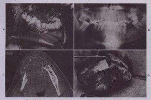 FIG. 28-2 Use of the combination of allogeneic and autogenous bone grafts to reconstruct mandible after resection for .arneloblastorna, A, Large expansile lesion of mandibular body and symphysis: B~ Panoramic radiograph of lesion. C, Axial computed tomogram showing size of lesion. 0, Resection of lesion via a transoral approach.
