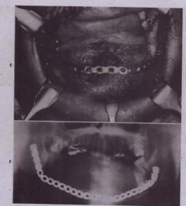 FIG. 28-2-coht'd E, Placement of large metal hone plate to reconstruct mandible after tumor resection, The plate is attached to both rami and provides support to the overlying soft tissues to prevent their contractio.n during the healing process. The tongue musculature is sutured to the bone plate to maintain its f.orward position, ensuring patency of the airway. F, Panoramic frontal radiograph showing bone plate in position: