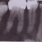 INJURIES TO ADJACENT TEETH
