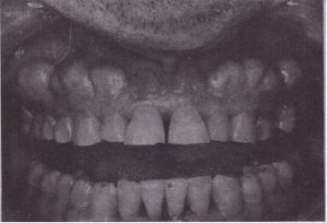 FIG. 11-9 Patient with heavy buccal cortical plate who requires open extraction.