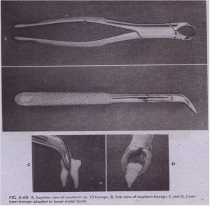 A. Superior view of cowhorn no. 2'3 forceps. B, Side view of cowhom forceps. C and 0, Cowhorn forceps adapted to lower molar tooth.