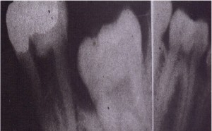 A, Tooth with severe periodontal disease with. bone loss and wide periodontal ligament space, This kind of tooth is easy to remove. 8, Retained mandibular second primary molar with an absent succedaneous tooth. It Is submerged, .and likelihood for ankylosed roots Is high