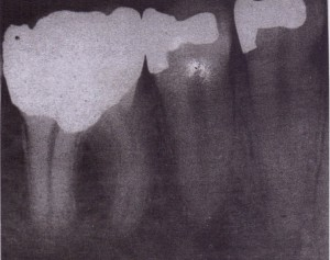 Teeth with large amalgam restorations. Thes-eare likely to be fragile and to fracture when extraction forces are applied