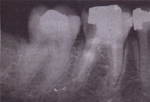 tooth made brittle by previous therapy it is more difficult to remove