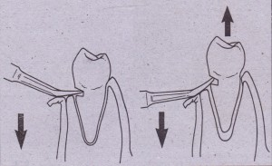 In removal of this mandibular premolar tooth, purchase point has been placed in tooth, which creates first-class lever situation. When Crane pick is inserted into purchase-point and handle forces apically (A), tooth is elevated occlusally out of socket with buccoalveolar bone used as fulcrum (B).