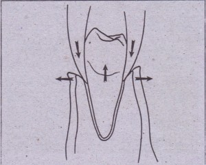Beaks of forceps act as wedge to expand alveolar bone and displace tooth in occlusal direction
