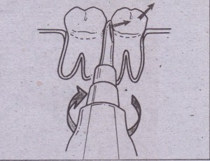 Handle of small straight elevator, turned so that occlusal side of elevator blade is-turned toward tooth,