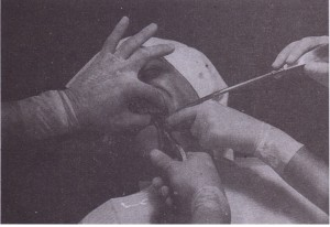 Extraction of maxillary left posterior teeth. Left index finger reflects lip and cheek and supports alveolar process on buccal aspect. Thumb is positioned on palatal aspect of alveolar process and supports alveolar process. Head is steadied by this grip, and tactile information is gained regarding tooth and bone movement