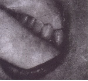 """Extraction of mandibular left posterior teeth. Surgeon's left index finger is positioned in buccal vestibule, .reflecting cheek, and second finger is positioned in lingual vestibule, 'reflecting """" tongue. Thumb is positioned under chin. Jaw is grasped between fingers and thumb to provide support during extraction"""
