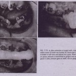 POSTEXTRACTION CARE OF TOOTH SOCKET