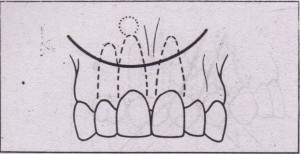 Semilunar incision, designed to avoid marginal attached gingiva when working on root apex. It is most useful when only small amount of access is necessary.