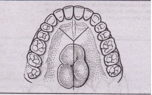 Y indsion is \Jseful on palate for adequate access to remove palatal torus. Two anterior limbs serve as releasing incisions to provide for greater access