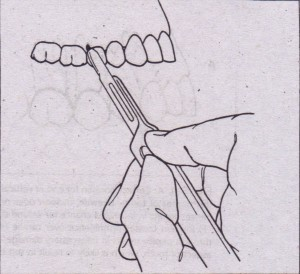 blade is used to incise gingival sulcus.