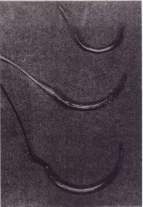Needle used in oral surgery is 3/s-circle cutting needle. Middle needle is FS-2,.and lower needle is X-1.