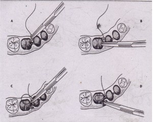 When mucosal flap is back in position, suture is passed through two sides of socket in separate passes of needle. A, Needle is held by needle holder and passed through papilla, usually of mobile tissue first. B, Needle holder is then released from needle; it regrasps needle on underside of tissue and is turned through flap. C, Needle is then passed through opposite side of soft tissue papilla in similar fashion. D, Finally, needle holoer grClsps needle on opposite side to complete passing of suture through both sides of mucosa.