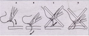 A, When passing through soft tissue of mucosa, needle should enter surface of tissue at right angle. B, Needle holder should be turned so that needle passes easily through tissue at right angles. C, If needle enters soft tissue at acute angle and is.pushed (rather than turned) through tissue, tearing of mucosa with needle or with suture is likely to occur (D).