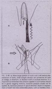 FIG. 8-48 A,
