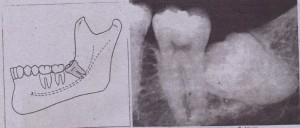 FIG. 9-16 A,