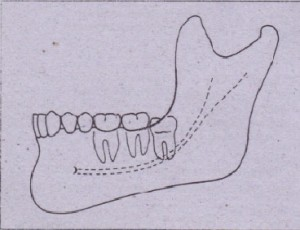 FIG. 9-21