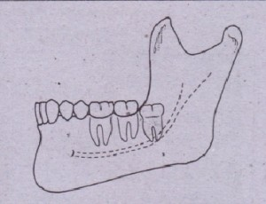 FIG. 9-22