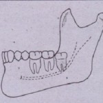 Relationship to Occlusal Plane