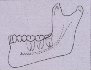 FIG. 9-23