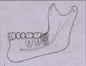 FIG. 9-24