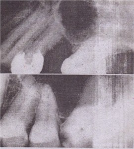 Maxillary molar roots appear to be in sinus, because sinus has pneumatized around roots