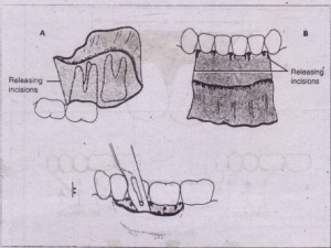 """FIG. 3-3 Three types of properly designed oral soft tissue flaps. A, Horizontal"""" and single vertical inci- $ions used to create two-sided flap. B. Horizontal and two vertical incisions used to create three-sided' flap. C, Single horizontal incision Used to create single-sided (envelope) flap"""