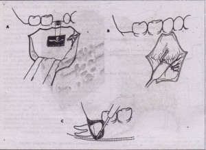 . FIG. 4-10 Three types of peripheral nerve injury. A, Neu~apraxia. Injury to nerve causes no loss of continuity of axon or endoneurium. Example .shown is implant placed in inferior alveolar canal, compressing the nerve. B, Axonotmesis. Injury to nerve causes loss of axonal continuity but preserves endoneurium. Example shown is overly aggressive retraction of mental nerve. C, Neurotmesis. Injury to nerve causes loss of .both axonal and endoneurium continuity. EXample is cutting of inferior alveo- I,ar nerve during removal of deeply impacted third molar.