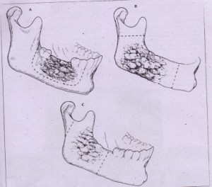 FiG. 22-8 Common types of mandibular resection. A, Marginal or segmental resection, which doesnot disrupt mandibular continuity. Band C, Partial mandibular resections, which disrupt mandibular continuity. At~E'mp.t~ to leave mandibular condyle to facilitate reconstruction are demonstrated.